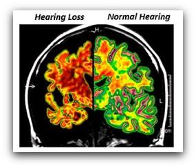 hearing loss brain function